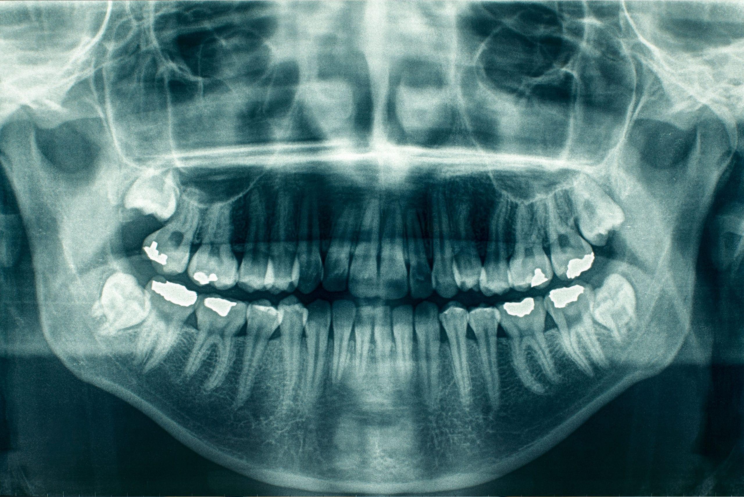 Dental Exam - Central Austin Dentist - Treaty Oak Dental - Dental Xrays