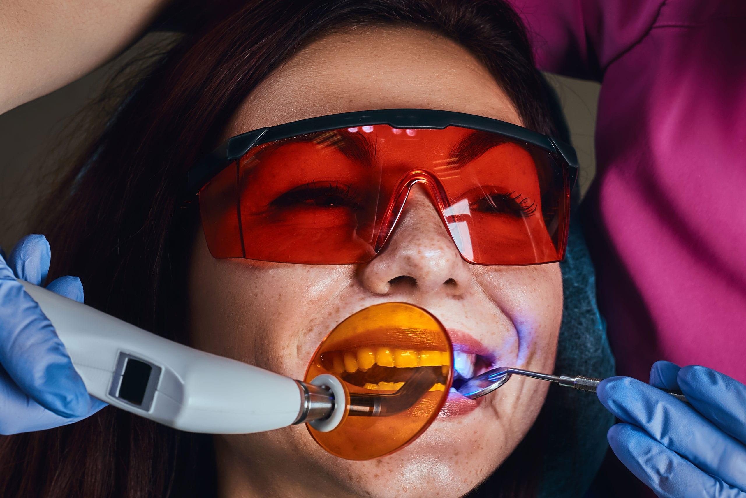 Tooth Bonding - Central Austin Cosmetic Dentist - Treaty Oak Dental